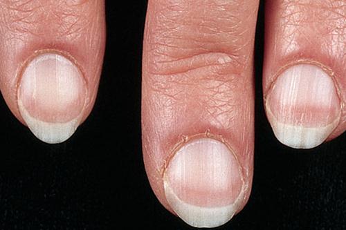 Móng tay nhợt nhạt có thể là dấu hiệu cảnh báo bệnh ung thư (ảnh minh họa)