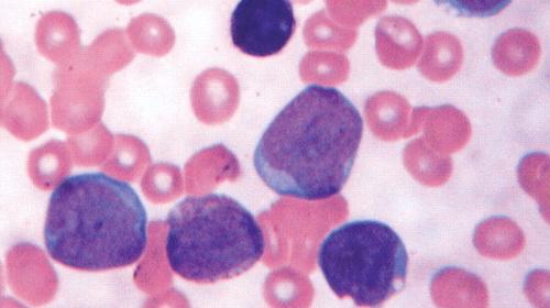 Phương pháp điều trị ung thư máu (ảnh minh họa)