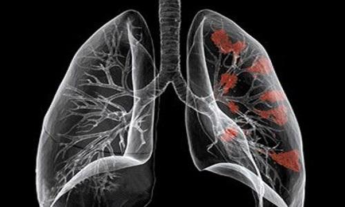 Nguyên nhân mắc ung thư phổi