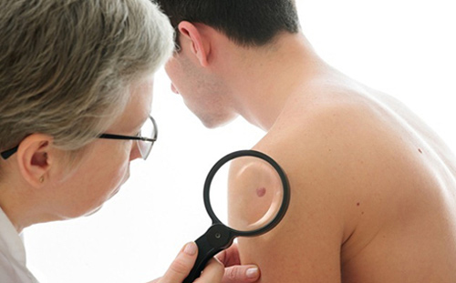 Nguyên nhân ung thư da