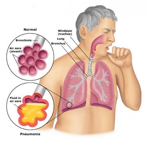 những triệu chứng ung thư phổi giai đoạn đầu