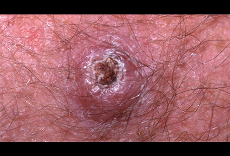 nhận biết ung thư da ác tính
