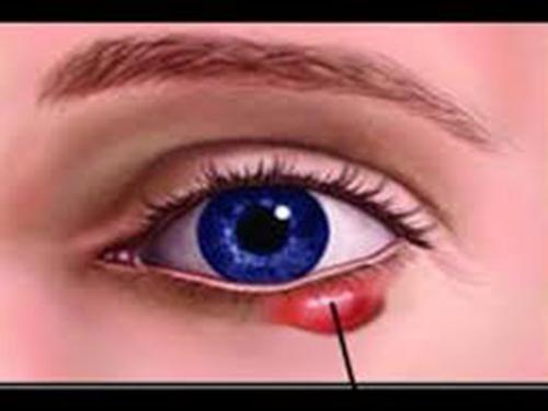 nhận biết ung thư mắt