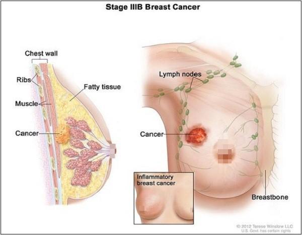 nhận thức về ung thư vú