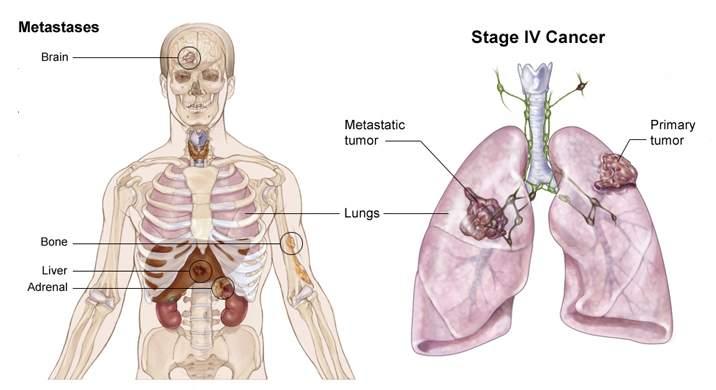 Những loạigen là nguyên nhân chính gây ra ung thư phổi đã được phát hiện