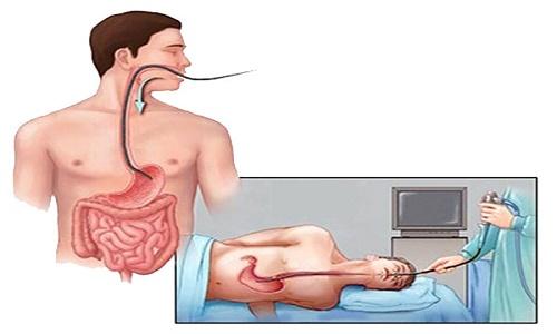 phát hiện sớm bệnh dạ dày