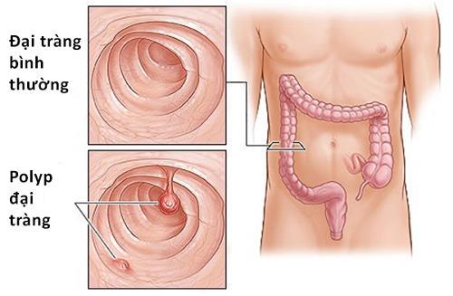 Polyp đại tràng gây ra ung thư đại trực tràng.