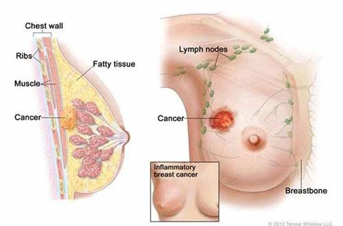 Phát hiện sớm ung thư vú