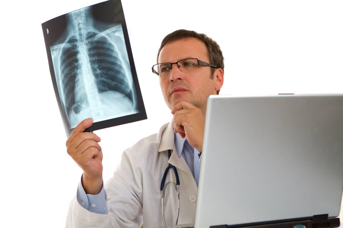 Phát hiện ung thư phổi sớm bằng phương pháp mới