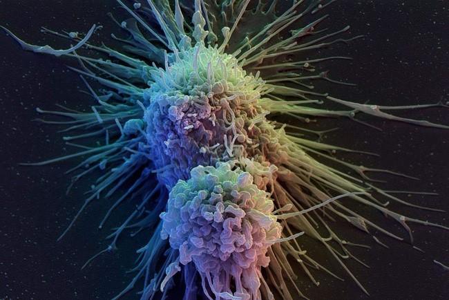 phương pháp chữa ung thư