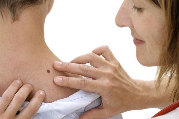 phương pháp điều trị ung thư da