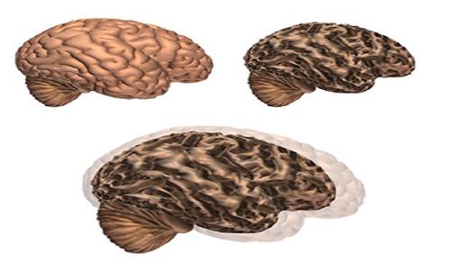 phương pháp mới hỗ trợ điều trị ung thư não