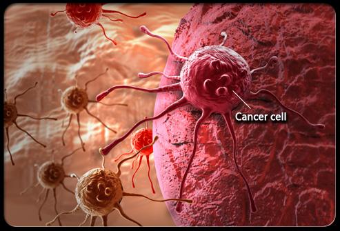 Hàng ngàn người tử vong vì ung thư máu