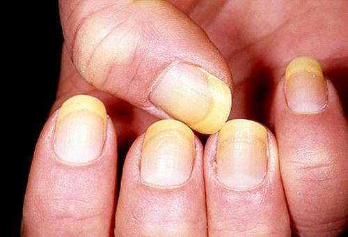 Sơn móng tay gây ung thư