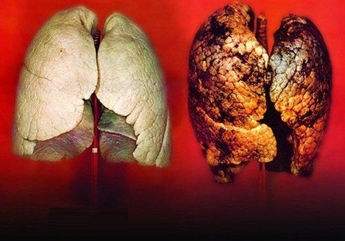 Tác hại của thuốc lá đối với cơ thể nghiêm trọng.