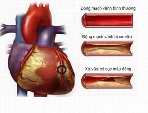 Tác hại của thuốc lá đối với cơ thể đặc biệt với hệ tim mạch.