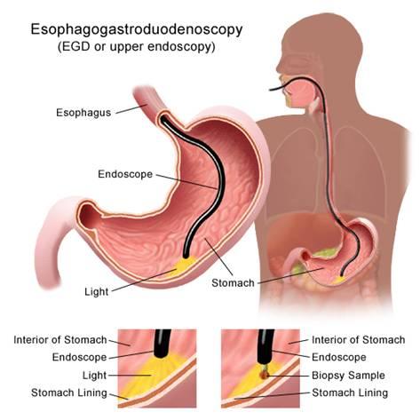 Tầm soát ung thư dạ dày bằng nội soi