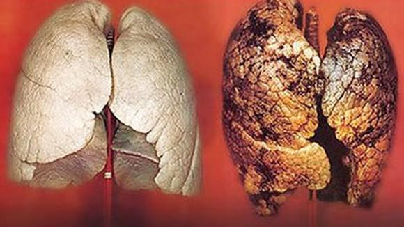 Thực phẩm ngăn ngừa ung thư phổi tái phát