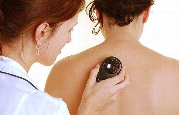 thuốc chữa ung thư da