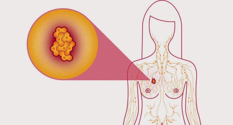 Ung thư vú ở phụ nữ có thể được điều trị bằng androgen