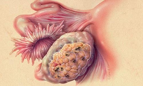 triệu chứng của ung thư buồng trứng