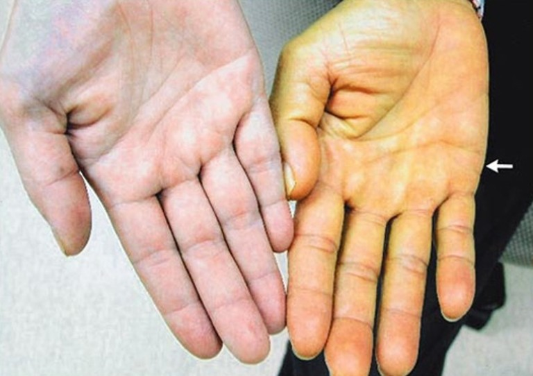 Vàng da là một trong nhữngtriệu chứng nhận biết ung thư túi mật