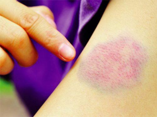 Dễ bầm tím – dấu hiệu dễ nhận biết nhất liên quan đến bệnh ung thư máu