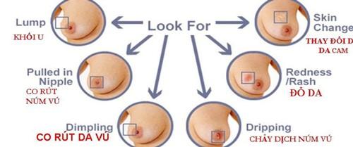 tự khám ngực phát hiện ung thư vú