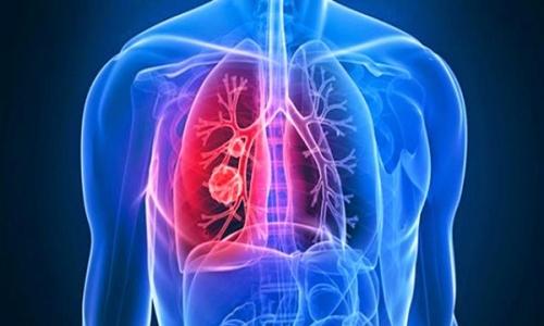 Tử vong vì ung thư phổi ngày càng tăng