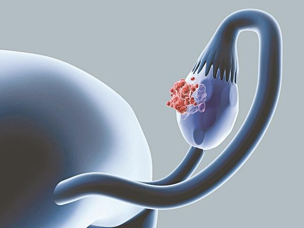 Ung thư buồng trứng là căn bệnh nguy hiểm