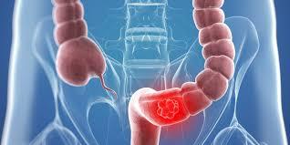 Nguyên nhân dẫn đến nguy cơ bị ung thư đại trực tràng