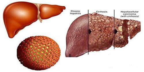 Thực phẩm nếu không muốn ung thư gan