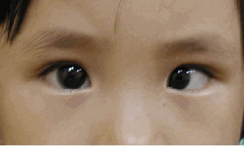 Lé mắt là dấu hiệu cảnh báo nguy cơ mắc ung thư mắt