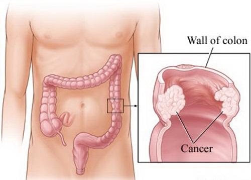 ung thư ở nam giới