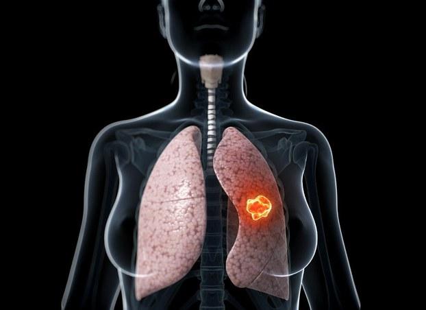 Gen liên kết là nguyên nhân dẫn tới ung thư phổi