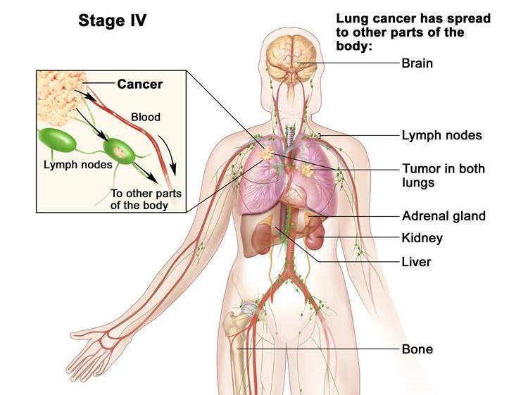 Ung thư phổi di căn là căn bệnh vô cùng nguy hiểm