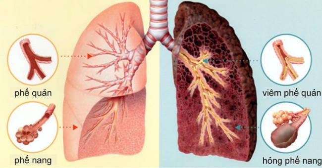 Ung thư phổi do thuốc lá gây ra