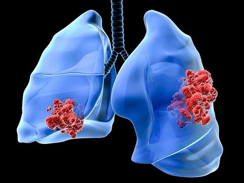 Bác sĩ chia sẻ kinh nghiệm chữa trị bệnh ung thư phổi giai đoạn cuối