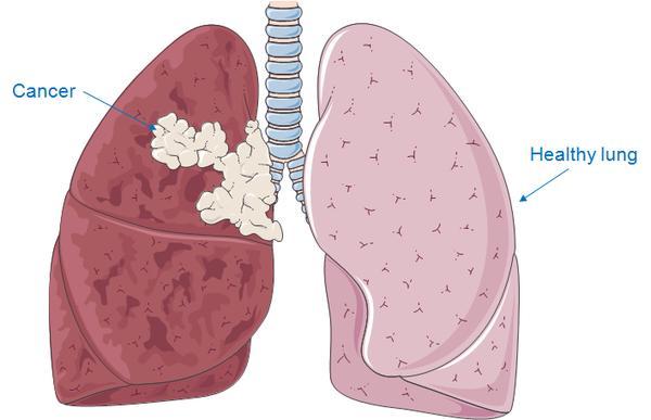 Ung thư tế bào biểu mô phổi là căn bệnh nguy hiểm