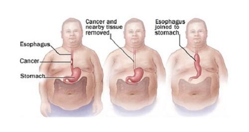 Ung thư thực quản giai đoạn 3 sống được bao lâu