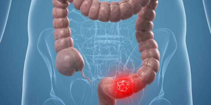 ung thư trực tràng do gen di truyền