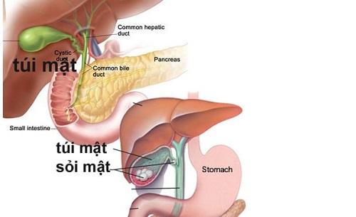 Phát hiện ung thư túi mật khi đã có sỏi.