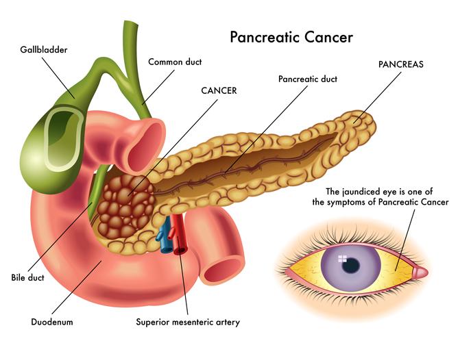 ung thư tụy sau sinh