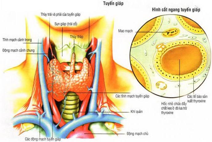 Ung thư tuyến giáp