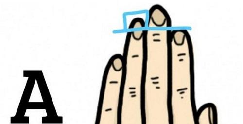 Nhận biết ung thư tuyến tiền liệt qua độ dài ngón tay