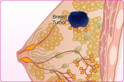 Lưu ý chế độ ăn uống có thể gây ung thư vú ở phụ nữ trẻ