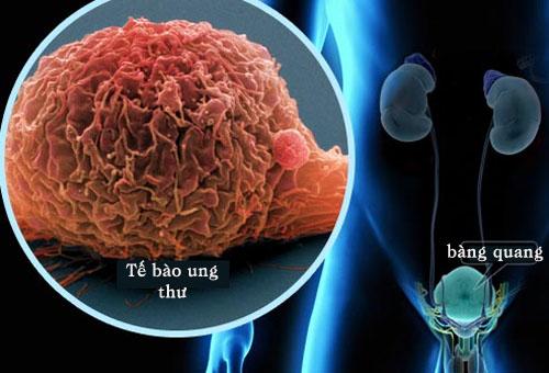 Tế bào ung thư bàng quang ở người