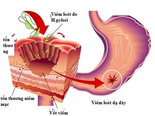 Vi khuẩn HP- nguyên nhân gây bệnh viêm loét bờ cong.