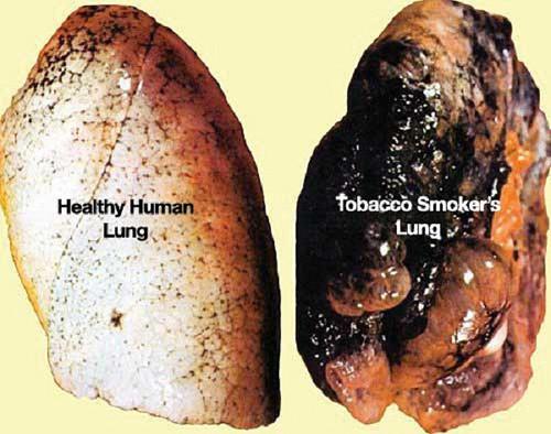 Chẩn đoán ung thư phổi - phát hiện nguyên nhân gây bệnh