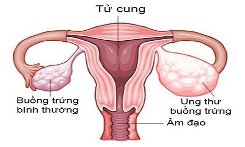 xét nghiệm tầm soát ung thư buồng trứng